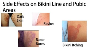 hair removal pubic Bikini